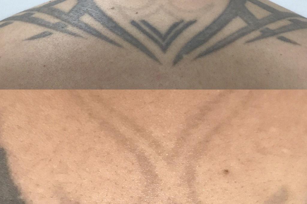 Eliminacion de tatuajes, Despigmentación láser